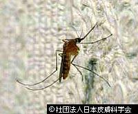 虫刺され!蚊とブヨの違い「アカイエカ」