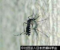 虫刺され!蚊とブヨの違い「ヒトスジシマカ」