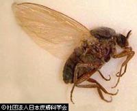 蚊 ブヨ 違い 虫刺され