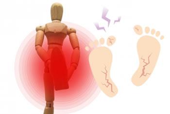 足の角質を除去するおすすめ方法「メリットとデメリット」