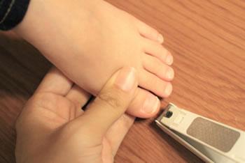 「足の爪の切り方」で巻き爪予防に!